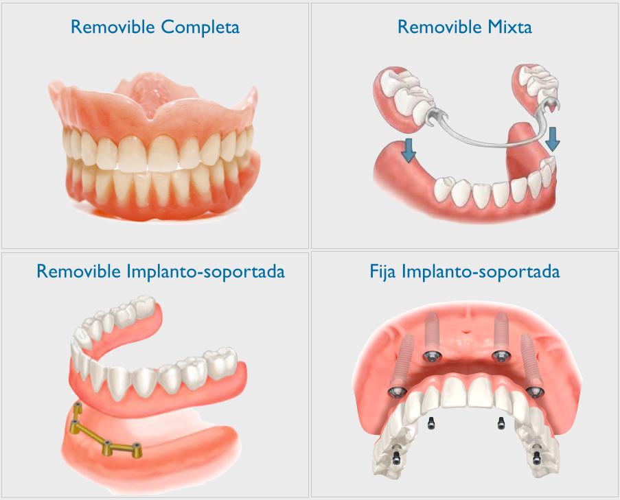 tipos de protesis dentales pdf